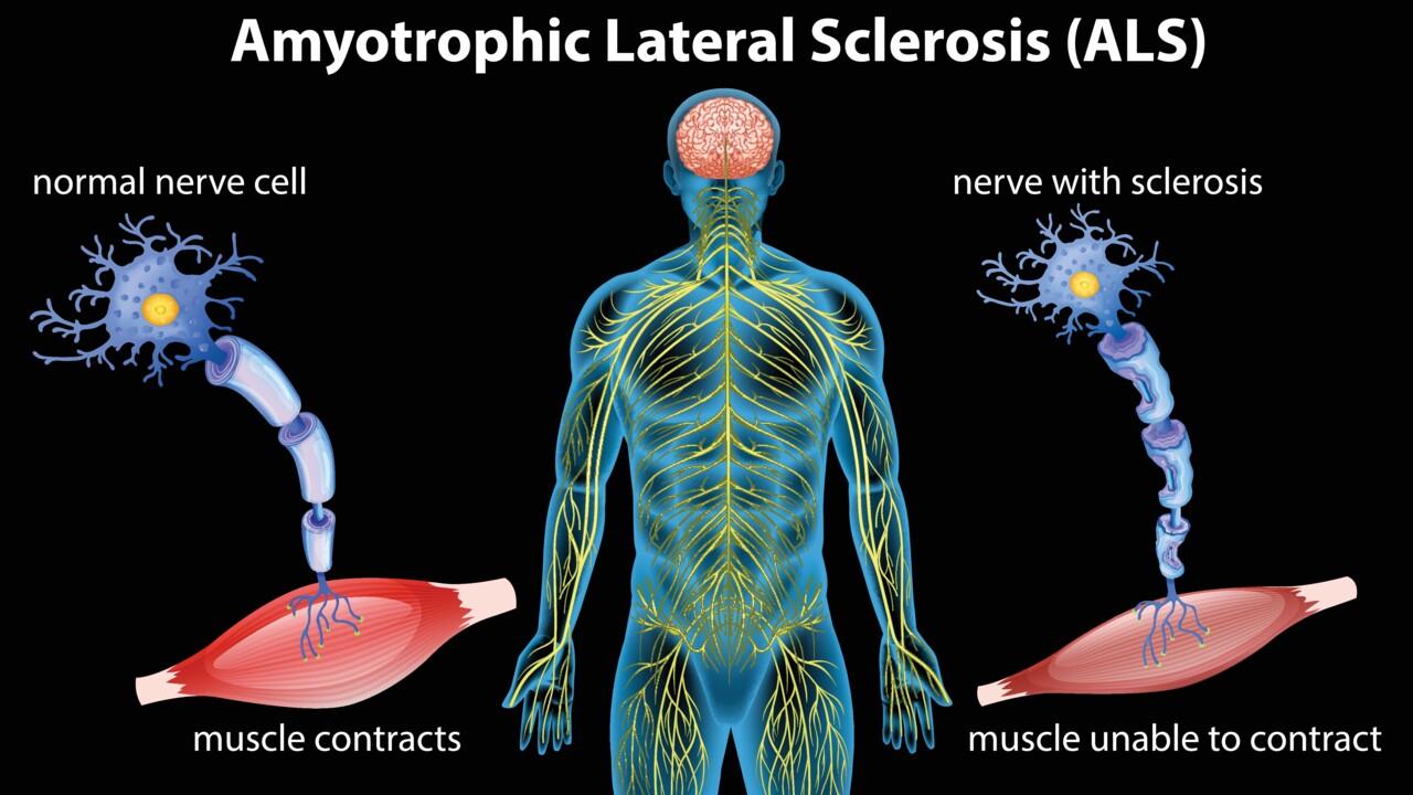 Schematisk illustration av hur ALS gör att nerver förlorar kontakten med musklerna